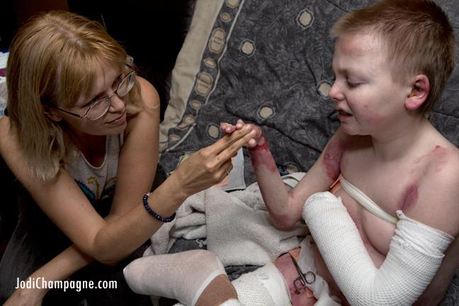 Nicky (and mom) during a bandage change, doing some physical therapy on his hand. From the book 'Courage Under Wraps'