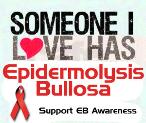 EB Awareness Tags by Silvia Pt 2